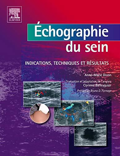 Echographie du sein : Indications, techniques et résultats (Ancien Prix éditeur : 129 euros) par Anne-Marie Dixon, Corinne Balleyguier