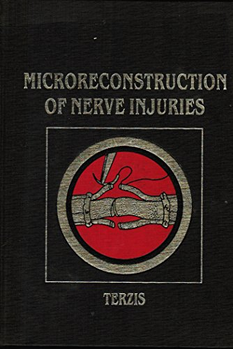 Microreconstruction of Nerve Injuries