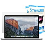 """TOP CASE - (Sets Of 2) Ultra-Clear High Definition (HD) Clear LCD Screen Guard For Old Generation Macbook Pro 13"""" With Retina Display Model: A1425 / A1502 - Glossy Clear"""