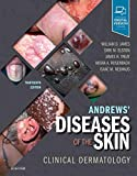 Andrews Diseases of the Skin: Clinical Dermatology