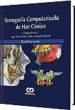 TOMOGRAFIA COMPUTARIZADA DE HAZ CONICO. DIAGNOSTICO APLICACIONES ORAL Y MAXILOFACIAL