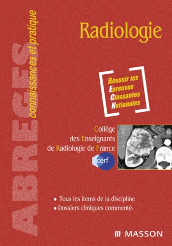 Livres gratuits Radiologie pdf ebook