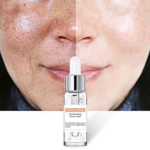 Symeas Acide Salicylique Solution Contrôle de l'huile Supprime les boutons Points noirs Pores Rétrécissant Essentiel Liquide Tache sombre Correcteur Anti-âge Sérum anti-rides pour le visage