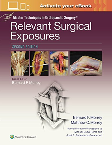Relevant Surgical Exposures (Master Techniques in Orthopaedic Surgery) por Bernard F. Morrey