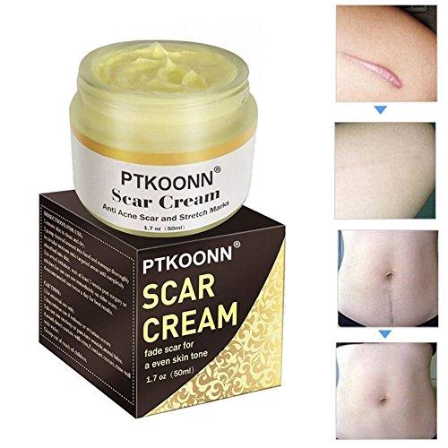 Narbencreme,Narbe gel,Narbenentfernung,Scar cream,Narbe Creme Narbe Behandlung,Scar Fade Cream,Behandeln Sie neue und alte Narben -...