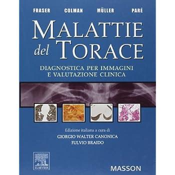 Malattie Del Torace. Diagnostica Per Immagini E Valutazione Clinica