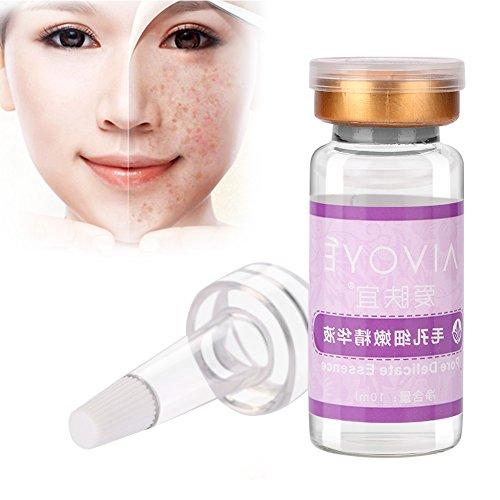 10 ml Poren Zarte Essenz Entfernen Mitesser Akne Feuchtigkeitsspendende Schrumpffolien Anziehende Lotion