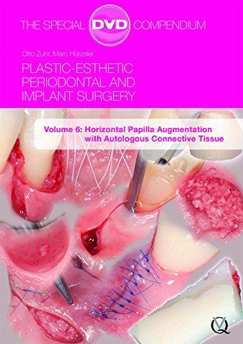 Plastic-Esthetic Periodontal and Implant Surgery, Volume 6: Horizontal Papilla Augmentation with Autologous Connective Tissue
