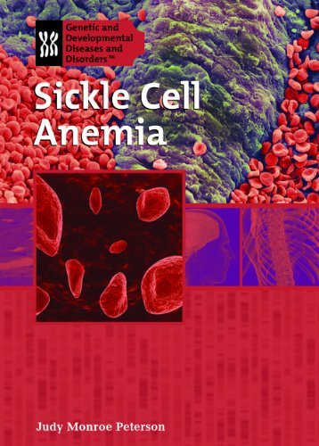 Sickle Cell Anemia (Genetic & Developmental Diseases & Disorders) by Judy Monroe Peterson (2008-09-01)