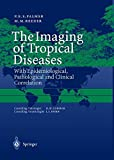 The Imaging of Tropical Diseases: With Epidemiological, Pathological and Clinical Correlation. Volume 1 and 2