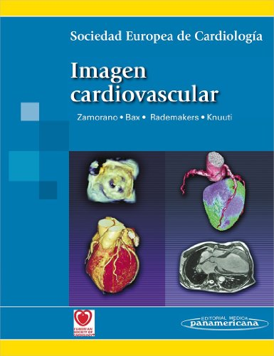Imagen cardiovascular