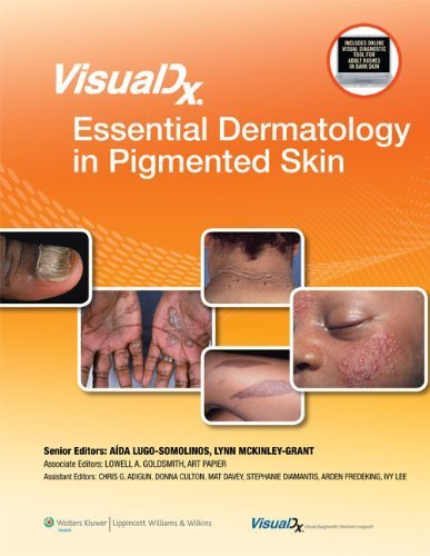 VisualDx: Essential Dermatology in Pigmented Skin (VisualDx: The Modern Library of Visual Medicine) by LWW (2011-06-29)