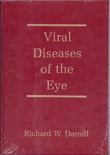 viral-diseases-of-the-eye