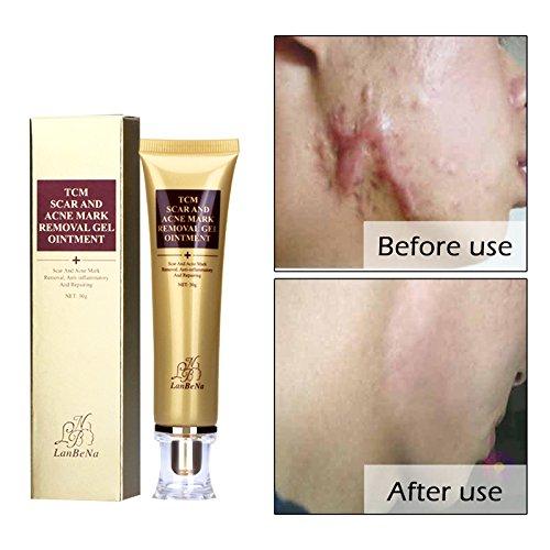 Alftek LANBENA Crema de cicatriz para el acné Esencia de ginseng Anti acné Crema para quitar el rostro Cuidado de la cara Manchas de maquillaje Estrías Eliminar producto de la cicatriz