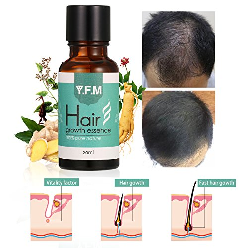 Hair Regrowth Treatment, Luckyfine Hair Growth Essence oil,Hair Loss Therapy,Accelerate the Growth of Hair【New and old packaging alternately shipped】