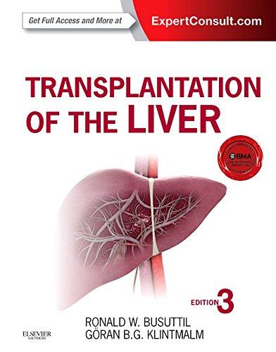 Transplantation of the Liver, 3e por Ronald W. Busuttil MD  PhD
