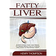 Fatty Liver Disease: The Ultimate Step-by-Step Guide To Understanding and Reversing Fatty Liver Disease (Liver Cleanse, Nutrition, Liver Cleanse, Healthy ... Detox Body, Weight) (English Edition)