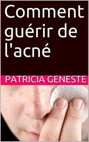Comment guérir de l'acné