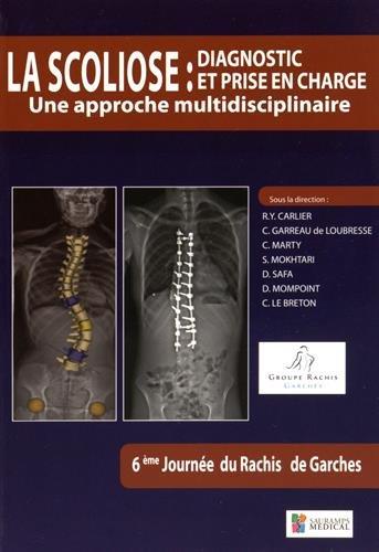 La scoliose : diagnostic et prise en charge : Une approche multidisciplinaire