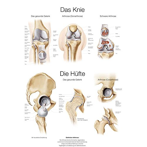 """Lehrtafel """"Das Knie / Die Hüfte"""", 50x70cm, Kunstdruckpapier"""