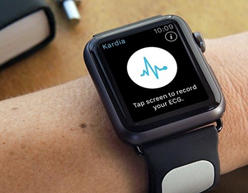 51G3IiLTJKL - [amazon.de] AliveCor Kardia Band für Apple Watch (38mm) für 229€