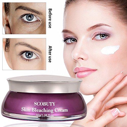 Whitening cream, Anti blemish solutions, Sommersprossen entfernen, Sommersprossen creme, New Anti Melasma Dark Age Spots Sommersprossen...