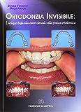 Ortodonzia invisibile. L'utilizzo degli allineatori dentali nella pratica ortodontica