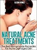 Acne Treatment For Teens Review and Comparison