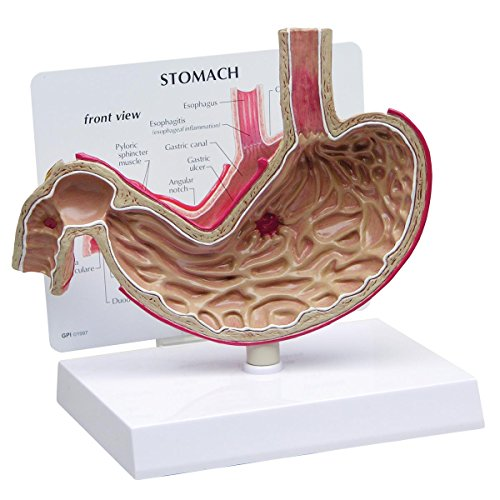 GPI Anatomicals 2000 Magen Modell mit Geschwür