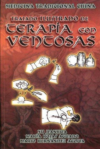Terapia China (Tratado Ilustrado de Terapia con Ventosas. Medicina tradicional China. (Spanish Edition) by Xu Jianhua (2008-06-05))