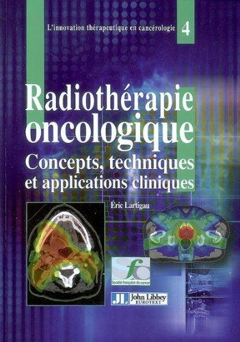 La radiothérapie oncologique: Concepts, techniques et applications cliniques
