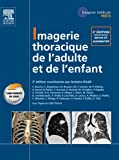 Imagerie thoracique de l'enfant et de l'adulte (French Edition)