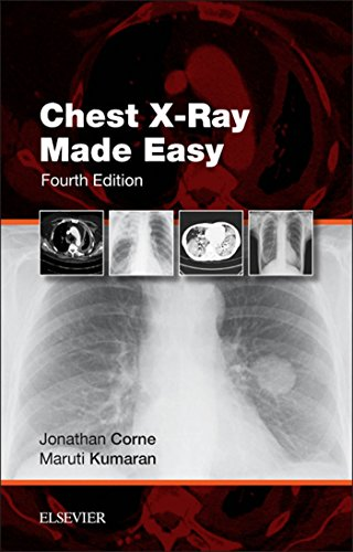 chest-x-ray-made-easy-e-book