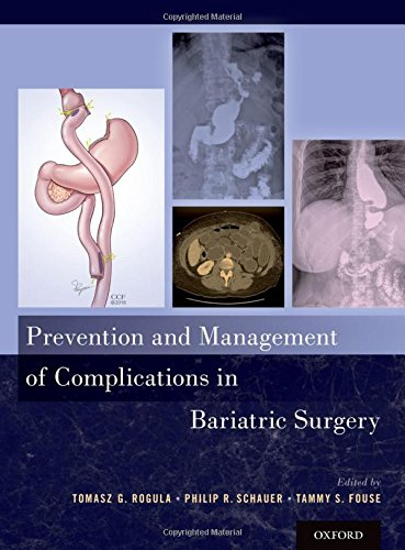 Prevention and Management of Complications in Bariatric Surgery