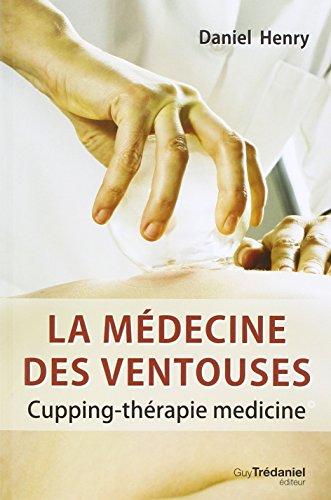 La médecine des ventouses : Cupping-thérapie medicine