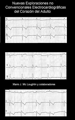 Nuevas Exploraciones Electrocardiográficas No Convencionales del Corazón del Adulto: Trabajo en progreso