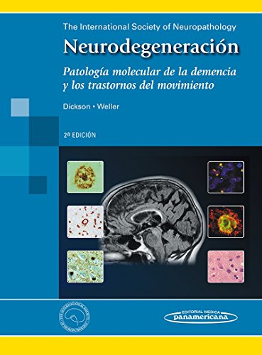 Neurodegeneración: Patología melecular de la demencia y los trastornos del movimiento por Dennis Dickson