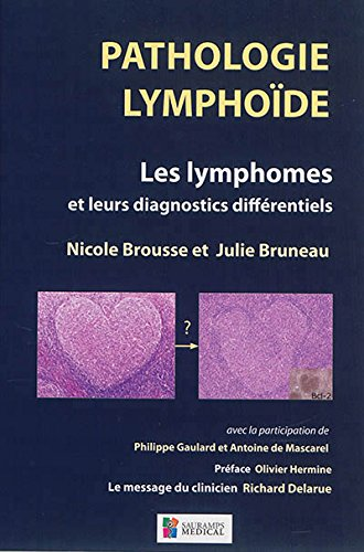 Pathologie lymphoïde : Les lymphomes et leurs diagnostics différentiels