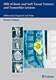 MRI of Bone and Soft Tissue Tumors and Tumorlike Lesions: Differential Diagnosis and Atlas