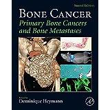 Bone Cancer: Primary Bone Cancers and Bone Metastases