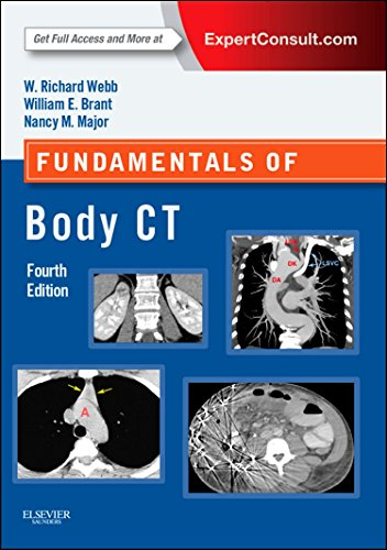 Fundamentals of Body CT, 4e (Fundamentals of Radiology) by W. Richard Webb (7-Aug-2014) Paperback