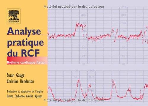 Analyse pratique du RCF : Rythme cardiaque foetal