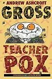 Gross Teacherpox by Andrew Ashcroft (2014-09-08)