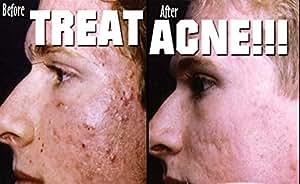 Generic 0.025% RETINOL VITAMIN A CREAM RETIN ACNE SCARS TREATMENT FIRM LIFT SKIN 10G