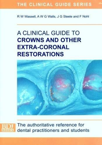A Clinical Guide to Crowns and Other Extra-coronal Restorations by R.W. Wassell