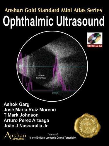 Ophthalmic Ultrasound (Anshan Gold Standard Mini Atlas) by Ashok (2009-08-01)