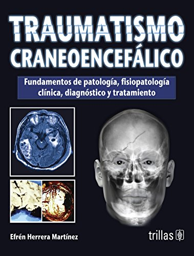 Traumatismo craneoencefalico/Traumatic brain injury por Efren Herrera Martinez