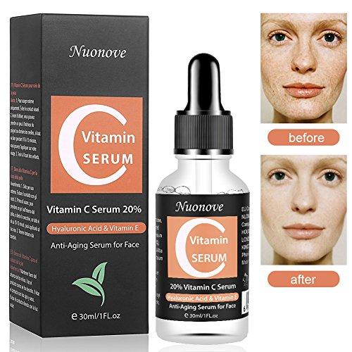 Vitamin C Serum mit Hyaluronsäure, Anti-Aging Gesichtsserum, Hyaluronsäure Serum für Gesicht, HOCHDOSIERT mit Hyaluronsäure / Anti-Aging...