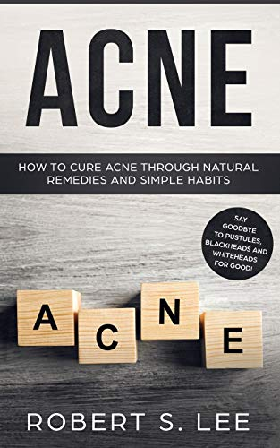 Acne: How to Cure Acne through Natural Remedies and Simple Habits. Say Goodbye to Pustules, Blackheads and Whiteheads for Good!