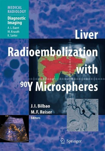 Liver Radioembolization with 90Y Microspheres (Medical Radiology) (2008-03-11)